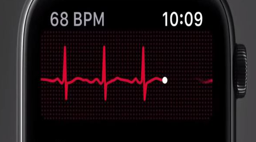 ECG On Apple Watch 4